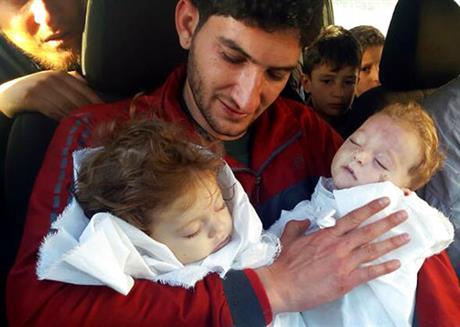 Syria twins_398346