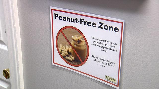 Peanut allergy_456522