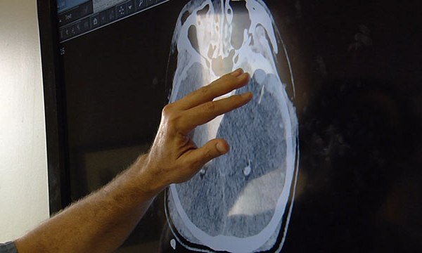 Brain scan injury hospital medical health generic_401821