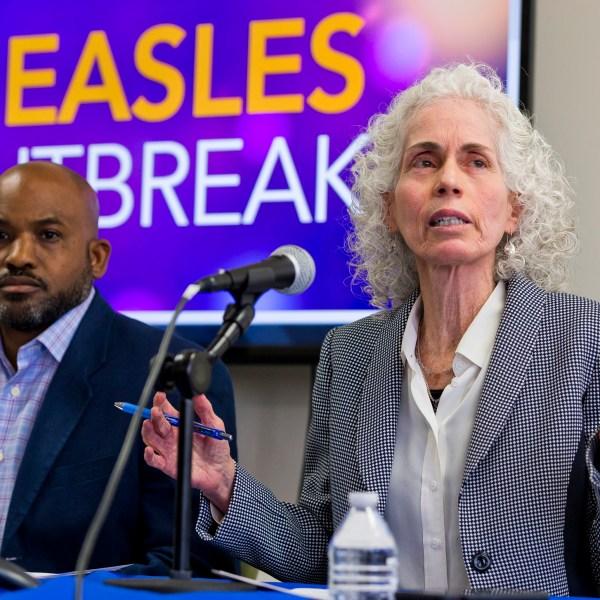 Measles_California_84782-159532.jpg51197387