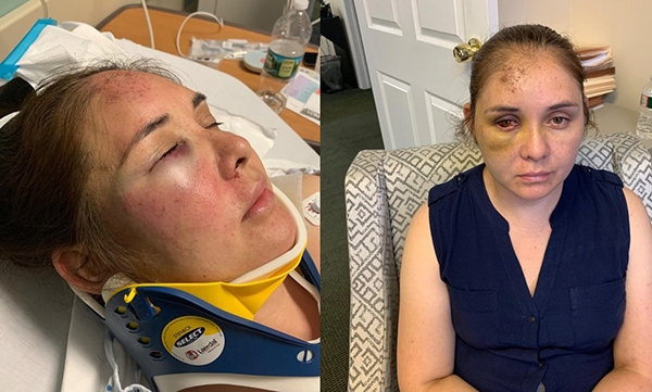 New Jersey woman attacked