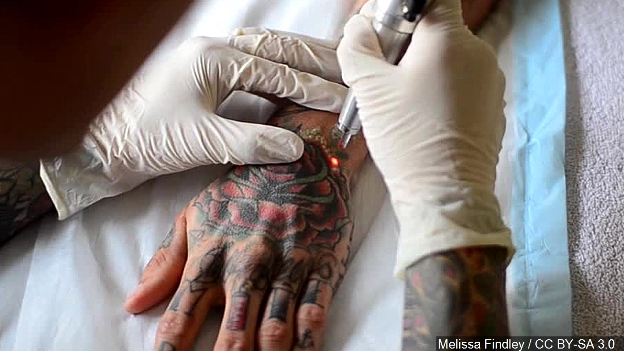 Tattoo Removal MGN