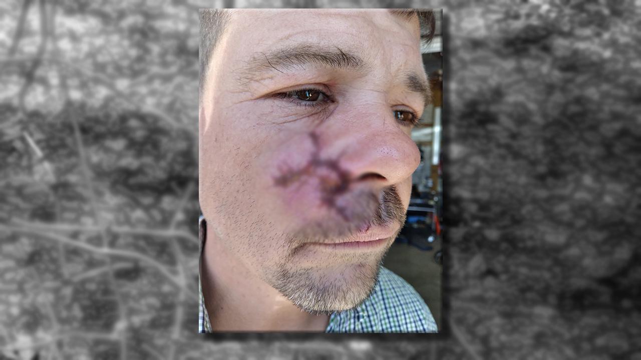 Dog Attack Victim