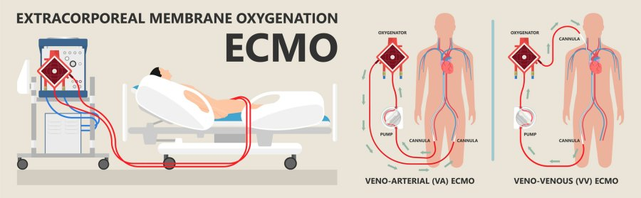 ECMO therapy infograph